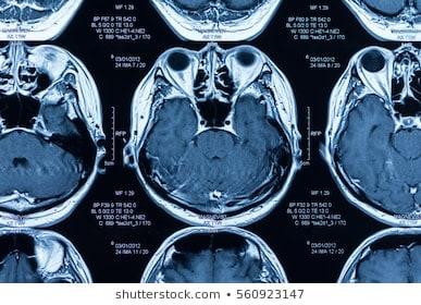 Avgifting etter MRI undersøkelse, narkose eller kontrastvæske